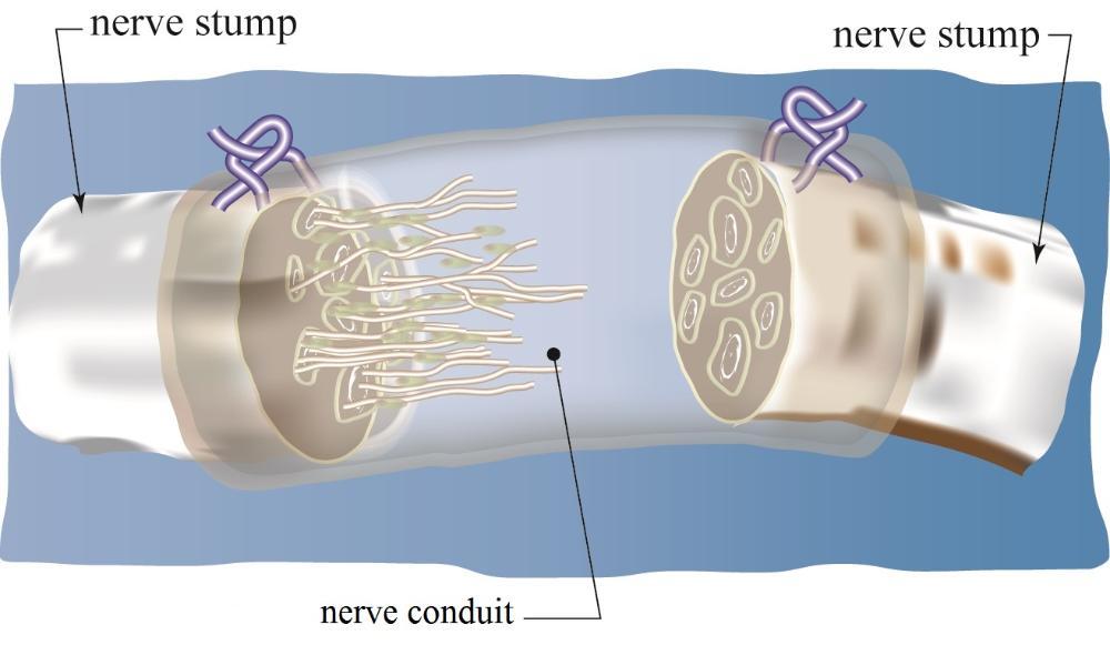 nerve regeneration essay Lisez « essays on peripheral nerve repair and regeneration » de avec rakuten kobo interest in the study of peripheral nerve repair and regeneration has increased significantly over the last twenty years.